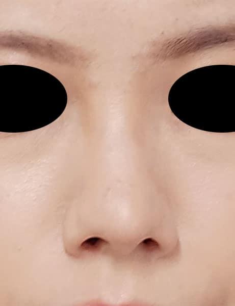 鼻尖縮小(3D法)、軟骨移植、鼻翼縮小(内側法) 8ヶ月後のAfterの写真