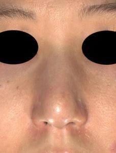 3ヶ月後 正面 鼻尖縮小(3D法)