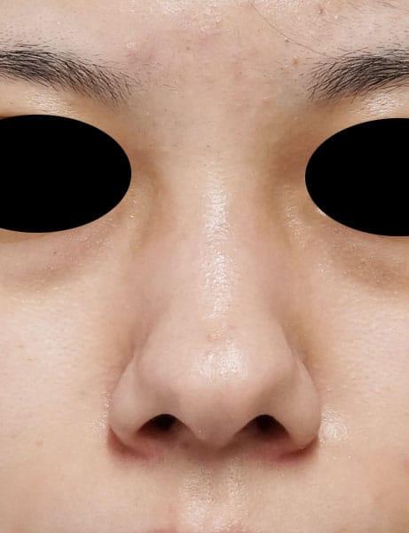 鼻尖縮小(3D法)、軟骨移植、鼻翼縮小(内側法) 8ヶ月後のBefore写真