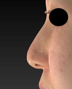 術前 左側面 鼻尖縮小(3D法)