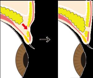 眼窩脂肪を引き下げてくぼみ目を改善