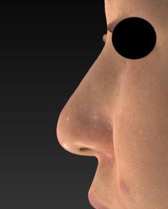 3ヶ月後 左側面 鼻尖縮小(3D法)