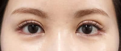 全切開、眼瞼下垂(挙筋前転) 直後~1ヶ月後のAfterの写真