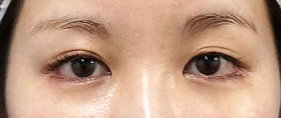 全切開、眼瞼下垂(挙筋前転) 直後~1ヶ月後のBefore写真