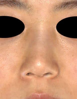 鼻尖縮小(3D法)、耳介軟骨移植 1ヶ月後のBefore写真