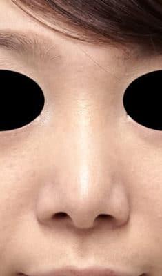 鼻尖形成(3D法)、小鼻縮小(フラップ法) 半年後のAfterの写真