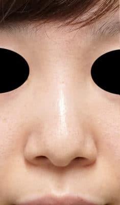 鼻尖形成(3D法)、小鼻縮小(フラップ法) 半年後のBefore写真