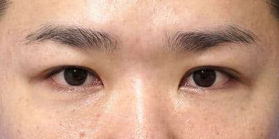 スマートバランス(二重埋没法)、下眼瞼下制 6ヶ月後のAfterの写真