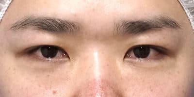 スマートバランス(二重埋没法)、下眼瞼下制 6ヶ月後のBefore写真