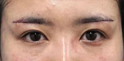 眉下切開 手術直後のAfterの写真