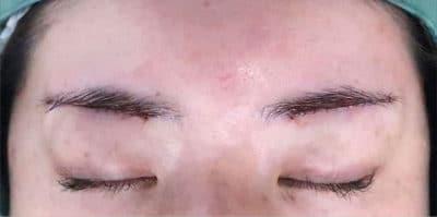 眉下切開 デザイン、手術直後のAfterの写真