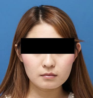 アラガン超強力小顔ボトックス 3ヶ月後のAfterの写真