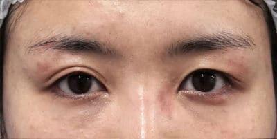 眉下切開 手術直後のBefore写真