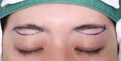眉下切開 デザイン、手術直後のBefore写真