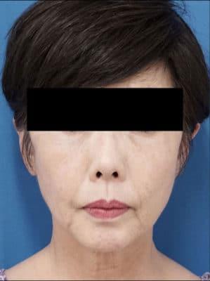 ヒアルロン酸(ボリューマ)(フィラーリフト、ほうれい線、マリオネットライン(口角)) 処置直後のBefore写真