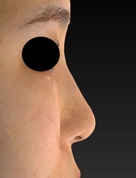右側面 手術前 鼻尖縮小(3D法)、軟骨移植