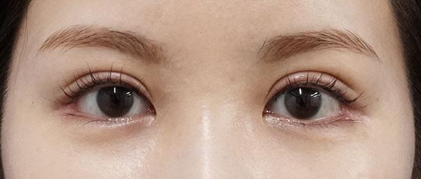全切開、眼瞼下垂(挙筋前転) 1ヶ月後