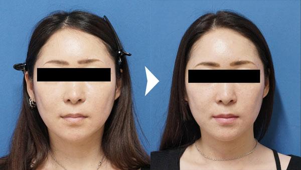 BNLS顔症例写真
