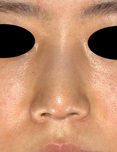 正面 1ヶ月後 鼻尖縮小(3D法)、軟骨移植