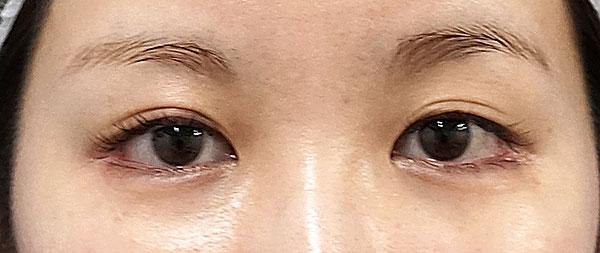 全切開、眼瞼下垂(挙筋前転) 手術前