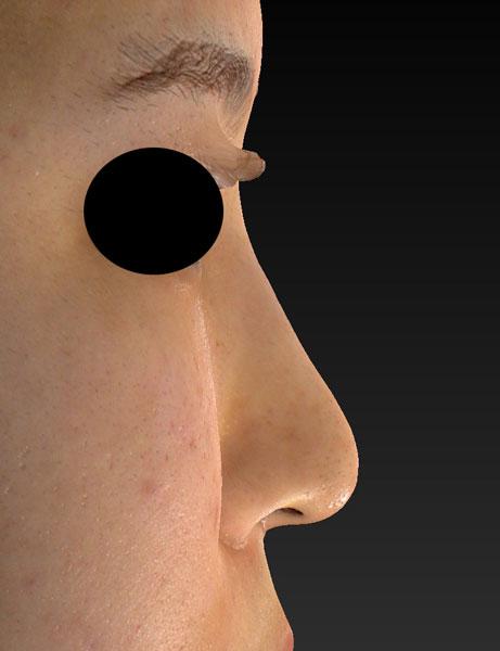 右側面 1ヶ月後 鼻尖縮小(3D法)、軟骨移植