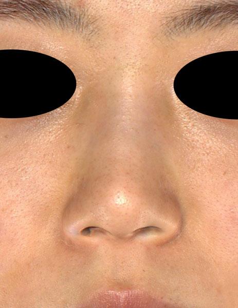 正面 手術前 鼻尖縮小(3D法)、軟骨移植