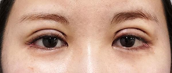 全切開、眼瞼下垂(挙筋前転) 手術直後