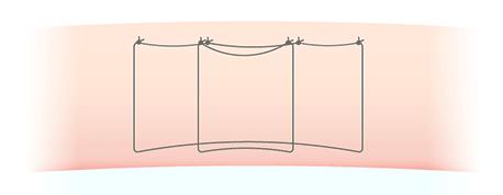 二重埋没法 マルティプルノット法の図