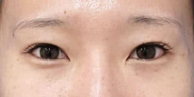 切らない眼瞼下垂プレミアム、目尻切開 半年後のAfterの写真