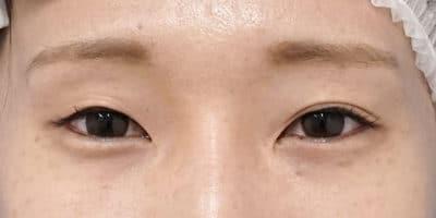 切らない眼瞼下垂プレミアム、目尻切開 半年後のBefore写真