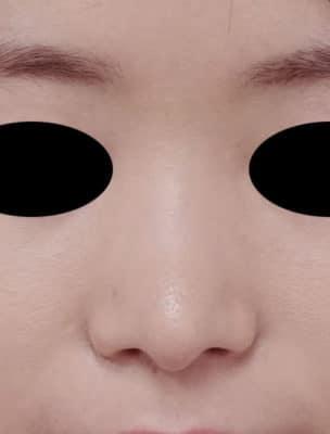 鼻尖縮小(3D法) 半年後のAfterの写真