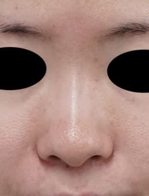鼻尖縮小(3D法) 半年後のBefore写真