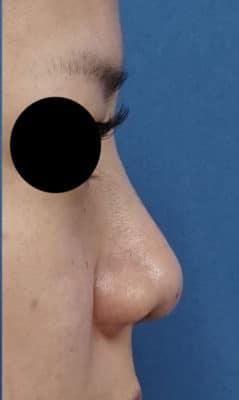 ミスコ(切らない鼻先延長)、クレヴィエル(鼻根) 処置直後のAfterの写真