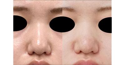 鼻尖縮小(3D法)、軟骨移植 半年後