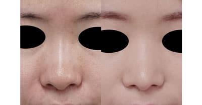 鼻尖縮小(3D法) 半年後