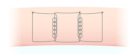 二重埋没法 スマートリンクの図