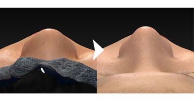 鼻尖縮小(3D法)+軟骨移植+プロテーゼ 1ヶ月後