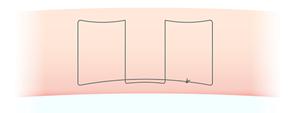 スマートバランス埋没法糸の断面図