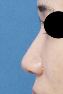 DSC07316鼻左側面