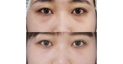 目の下脂肪取り+コンデンス脂肪注入 3ヶ月後