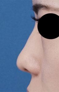 鼻尖縮小、軟骨移植 左側面 半年後