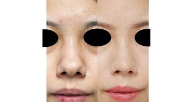 鼻尖縮小(3D法)、軟骨移植、鼻翼縮小(内側法) 8ヶ月後