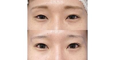 切らない眼瞼下垂プレミアム、目尻切開 半年後