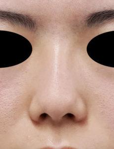 鼻尖縮小、軟骨移植 正面 手術前