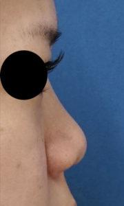 ミスコ(切らない鼻先延長)、クレヴィエル(鼻根) 処置前
