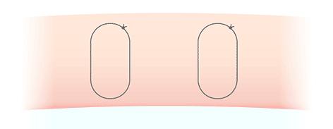 吸収糸二重術糸の断面図