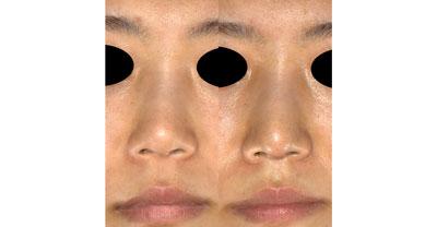 鼻尖縮小(3D法)、耳介軟骨移植 1ヶ月後
