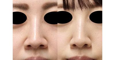 鼻翼縮小(内側法、フラップ法) 6ヶ月後