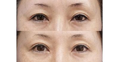 切らない眼瞼下垂+二重埋没法(切らない眼瞼下垂プレミアム) 3ヶ月後