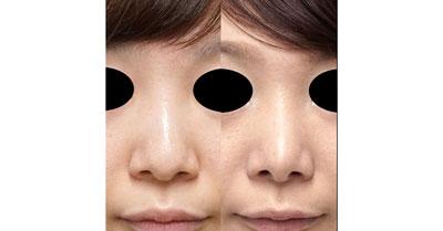 鼻尖形成(3D法)、小鼻縮小(フラップ法) 半年後